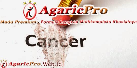 info herbal untuk mengobati kanker secara alami aman tanpa efek samping