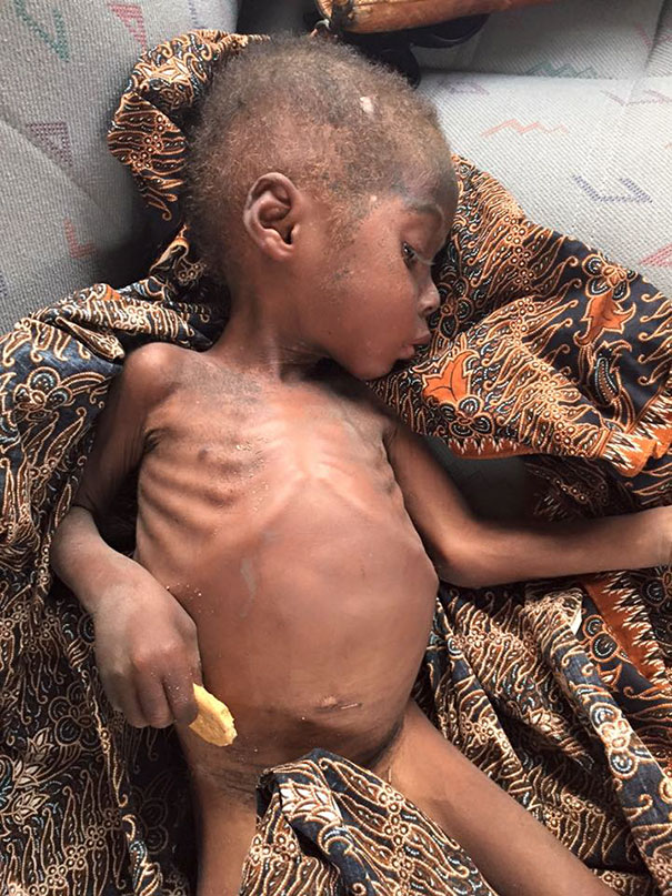 Hope was suffering from malnutrition and worms - Heartbreaking Moment When A 2-Year-Old Left To Die Is Given Water In Nigeria