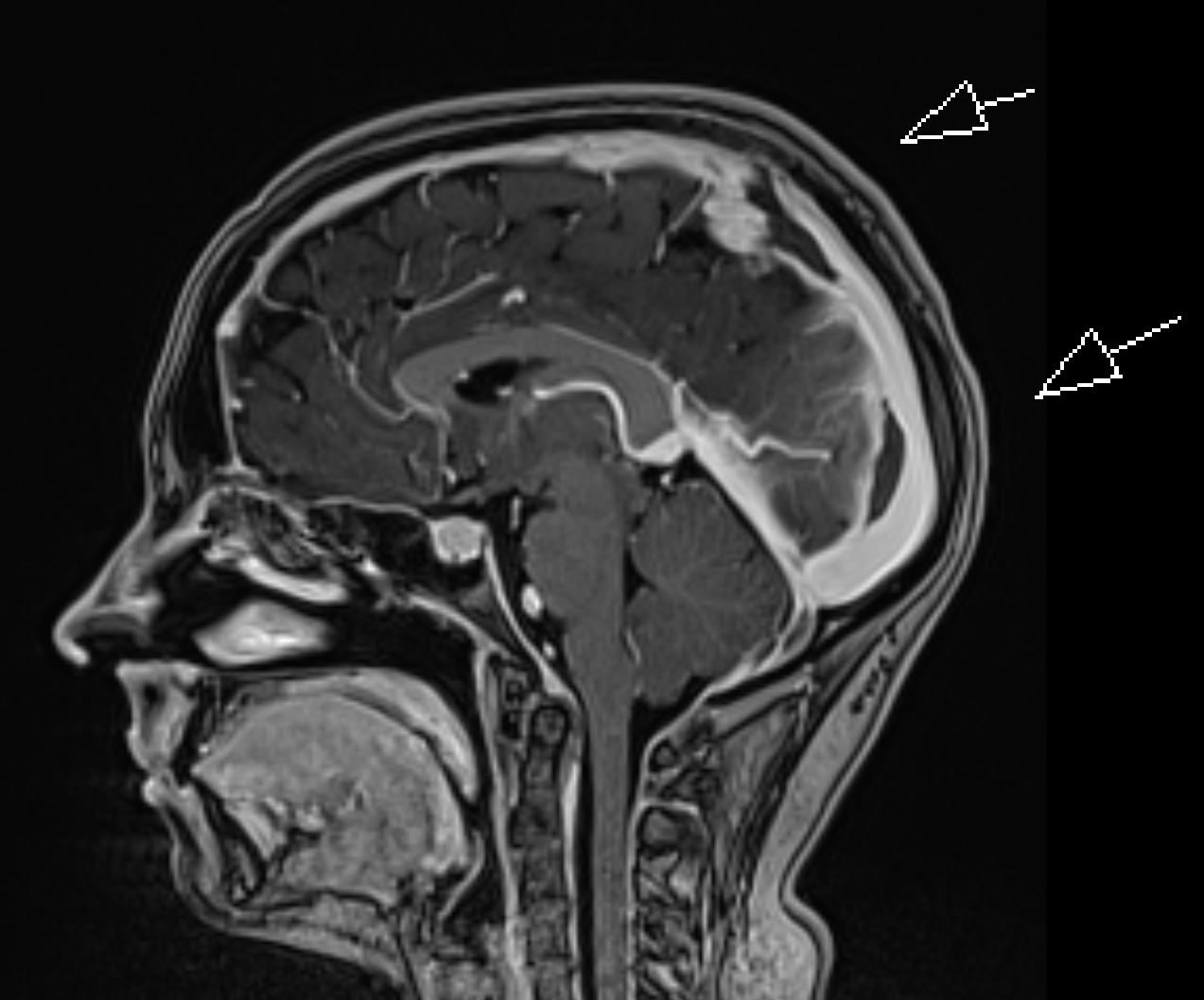 Radiology MRI: Intracranial Hypotension with Dural Sinus Thrombosis