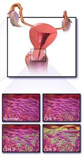 gejala kanker serviks - indikator - ciri ciri