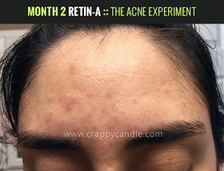 Month 2 on Retin-A :: The Acne Experiment