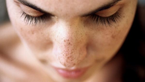 10 Natural Beauty Tips To Cure Dark(black) Spots