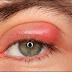 Blefaritis Definisi Penyebab Dan Pengobatan Serta Pencegahan Blefaritis Menurut Ilmu Kedokteran