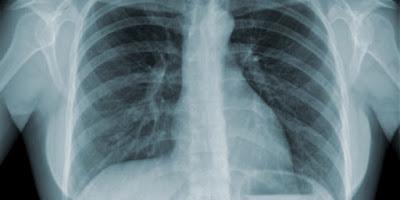 cara mengobati tbc paru secara tradisional hingga sembuh total