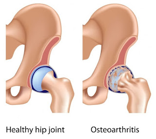 image-result-for-osteoarthritis-of-hip