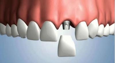 trồng răng implant giá rẻ nhất là bao nhiêu -6