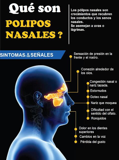 3 Maneras De Tratar Naturalmente Los Polipos Nasales Qisoma