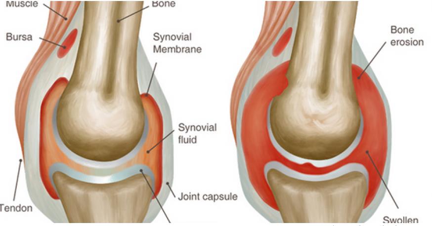 Gaya Hidup dan Perawatan Rumah yang Mudah untuk Arthritis.