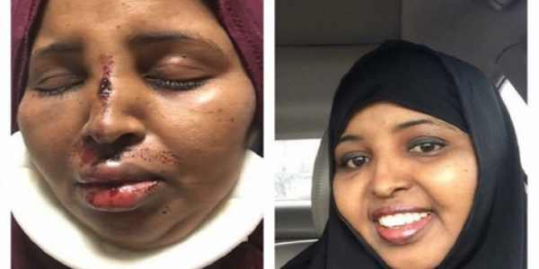 Ohio: Muslim Woman Brutally Beaten, Attacker Released Without Charge