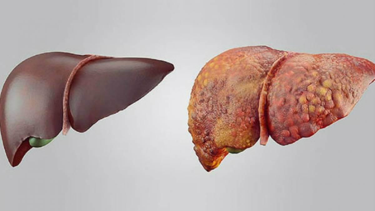 Inilah Beberapa Gejala Organ Hati Dipenuhi Racun