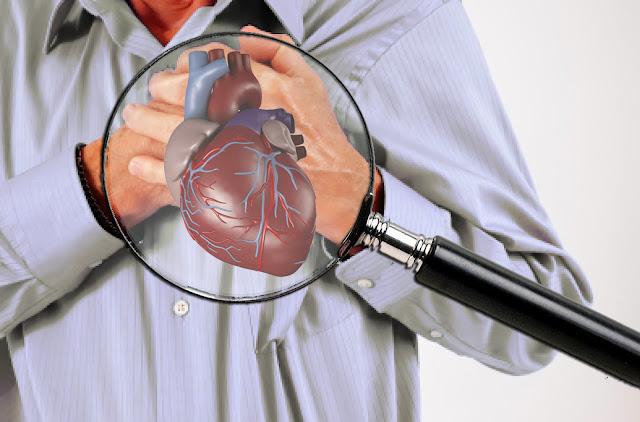 Penyakit Serangan Jantung
