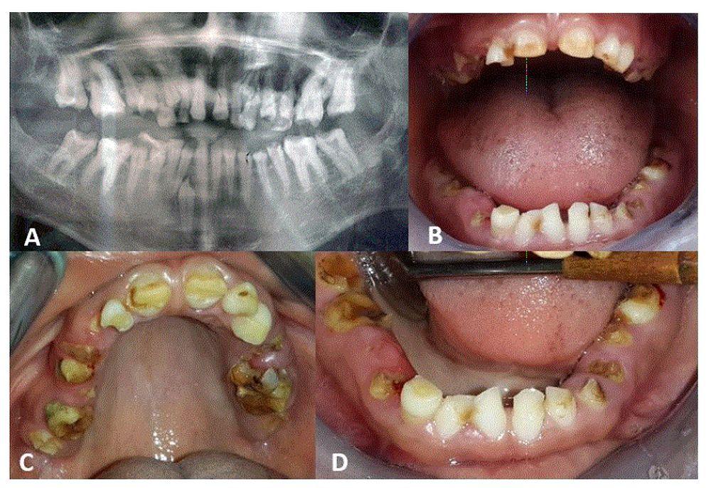 Emergency Pediatric Dentistry