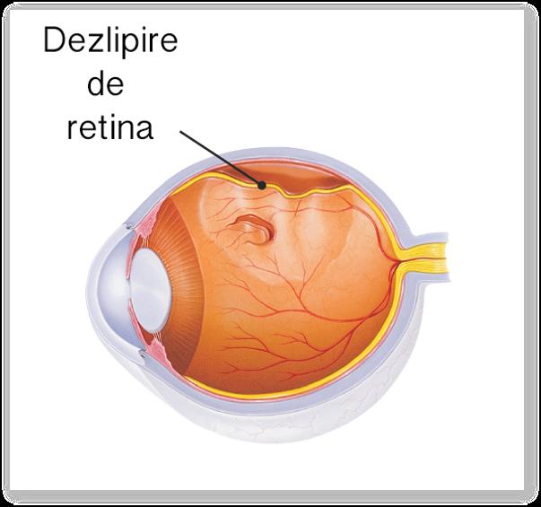 Dezlipirea de retina are un singur tratament: operatia