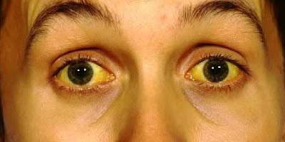 obat tradisional gejala penyakit kuning