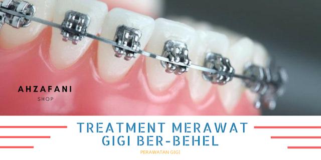 Treatment Tambahan Merawat Gigi Ber-Behel