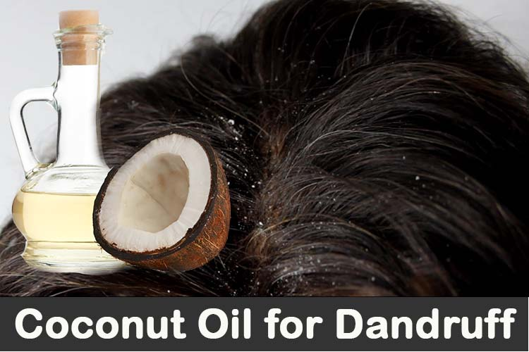 Use of coconut oil against dandruff