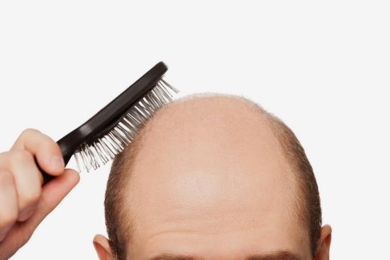 Previna a perda de cabelos