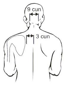 pengobatan akupuntur