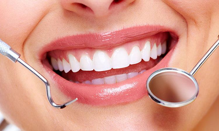 dentes brancos, sorriso, clareamento dental