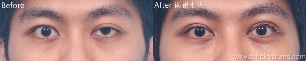 大小眼提眼肌手術台中推薦-ptosis05