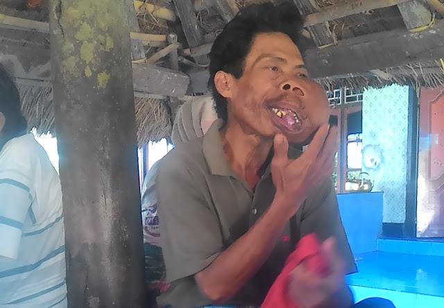 Pria Ini Memilh Membiarkan Tumor di Lehernya Karena Hal Ini