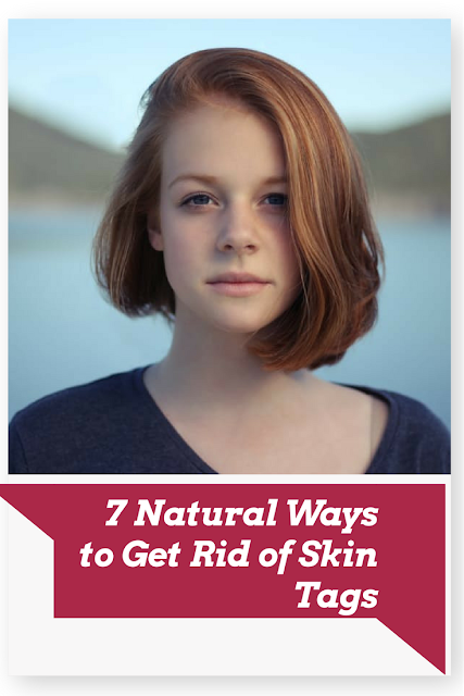 7 Natural Ways to Get Rid of Skin Tags