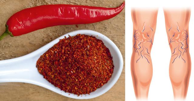 5 Ways To Naturally Reverse Varicose Veins