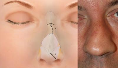 pergeseran tulang hidung