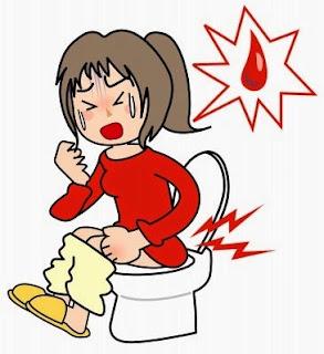 Obat Aman Untuk Mempercepat Penyembuhan Wasir Berdarah
