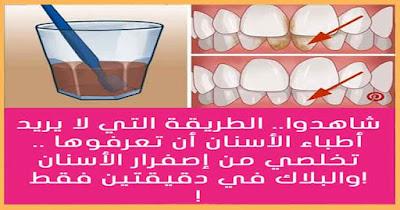 طريقة مضمونة للتخلص من صفار الأسنان بدون الذهاب إلي الطبيب