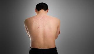 Penyebab dan cara mengatasi jerawat di punggung
