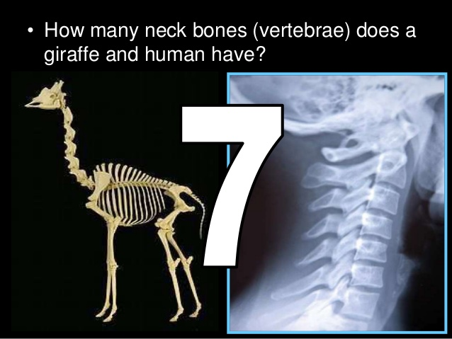 A Sure Word: Most Mammals Have 7 Cervical Vertebrae – Not Quite ...