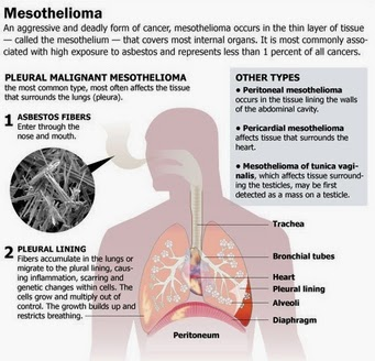 Several Symptoms of Mesothelioma