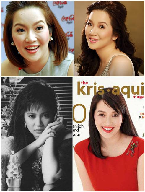 Gossip Ghirl Philippine Actresses That Have Undergone Surgery