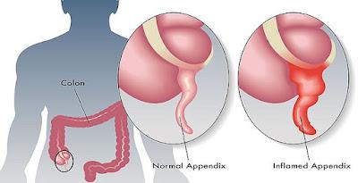 Enfermedad apendicitis