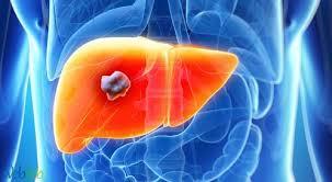 الأسباب الرئيسية لتلف الكبد هي.