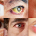 6 Eye Symptoms That You Might Have Hidden Health Problems