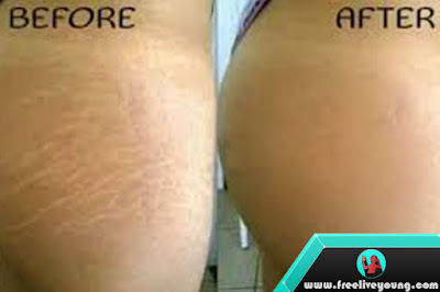 How to Eliminate Stretch Mark