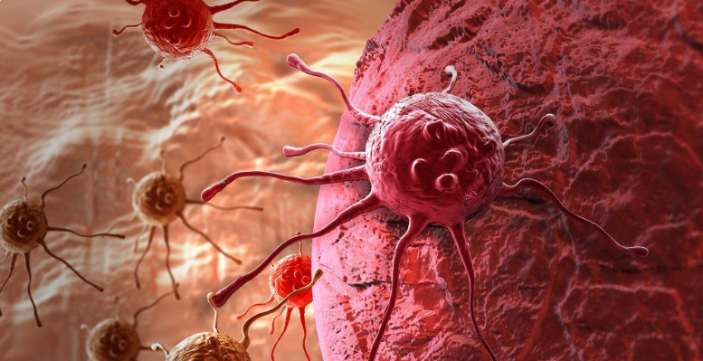 Apa itu Kanker ? Kenali Tanda-Tanda & Gejala Kanker