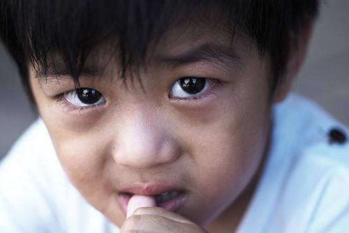 اسباب قضم الاظافر عند الاطفال