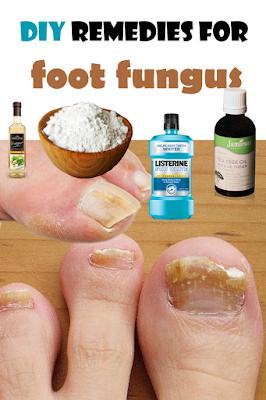 DIY remedies for foot fungus