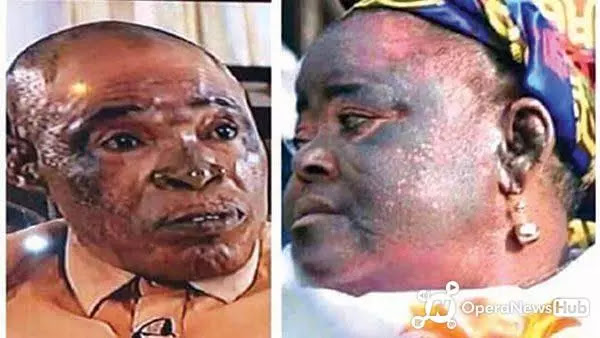 Do You Use Bleaching Cream? This Vital Information Is For You