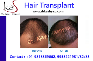 #HairSurgeon #HairCare #FUE  #HairRepair #PRP #HairTransplant #HairGrowth #HairRestoration #FUT #Beard #Online #Search #Consultation #Delhi  #MedicalTourism #Abroad #Asia #Europe #Africa #America #Australia