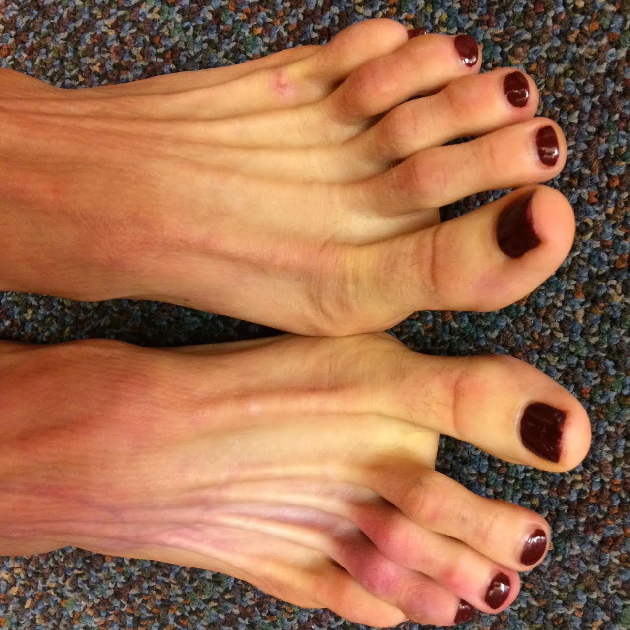 Foot and Ankle Problems By Dr  Richard Blake: Skin and Subcutaneous