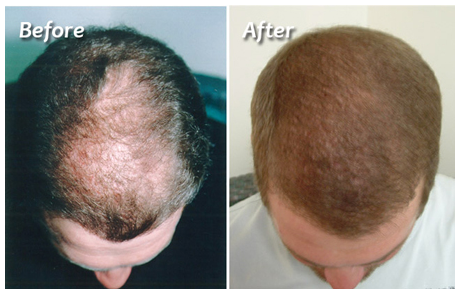 http://reconfaceindia.com/hair-restoration.php