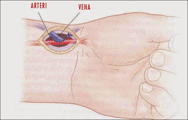 Perbedaan Arteri dan Vena