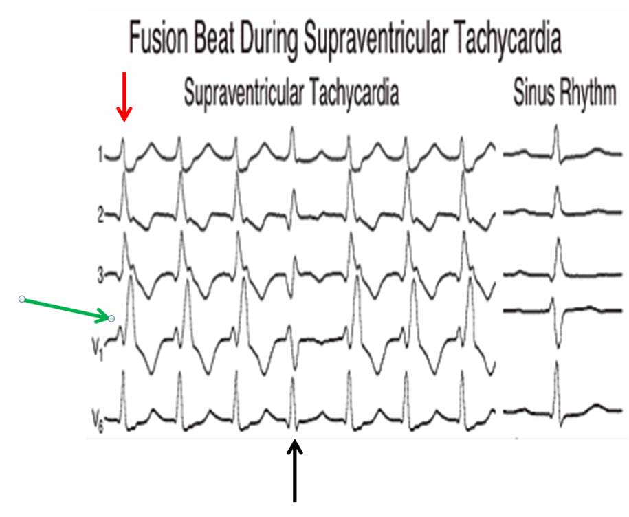 Dr  Smith's ECG Blog: Fusion Beat During Supraventricular