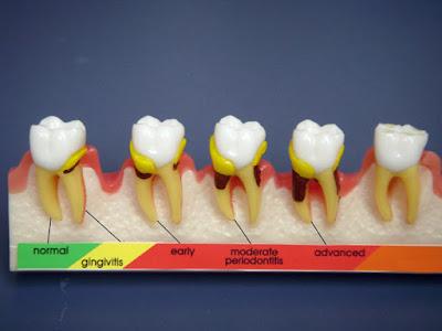Problemas en dientes y encias