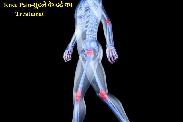 Knee Pain-घुटने के दर्द