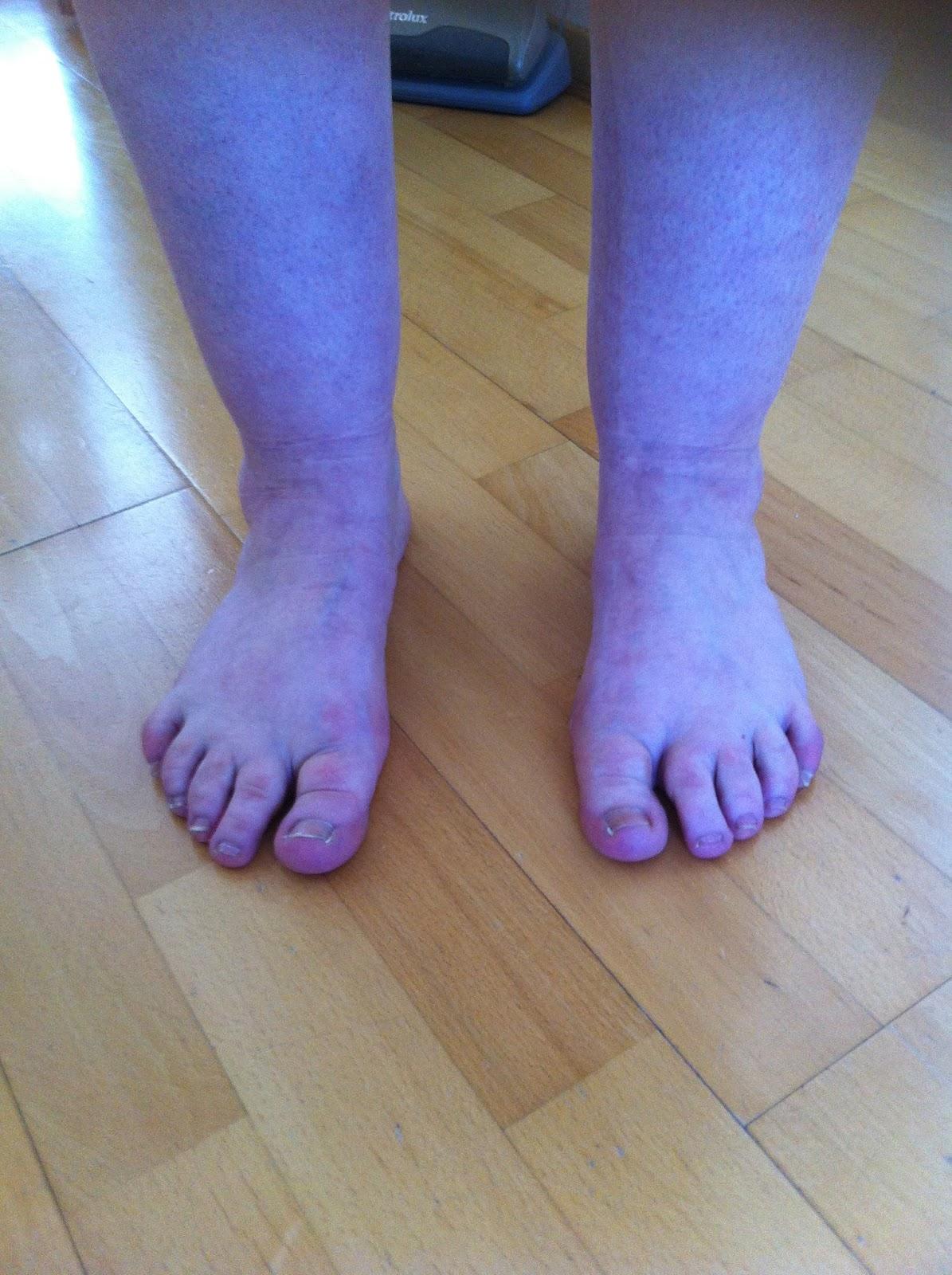Virpin kauneuden ja hyvinvoinnin hoito: Jalkahoito